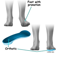 orthotics image