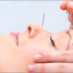 Benefits of Cosmetic Acupuncture